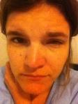 Casey squint